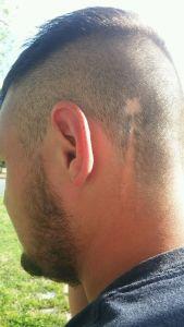 Dillan's Scar